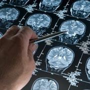 une radiographie d'un cerveau